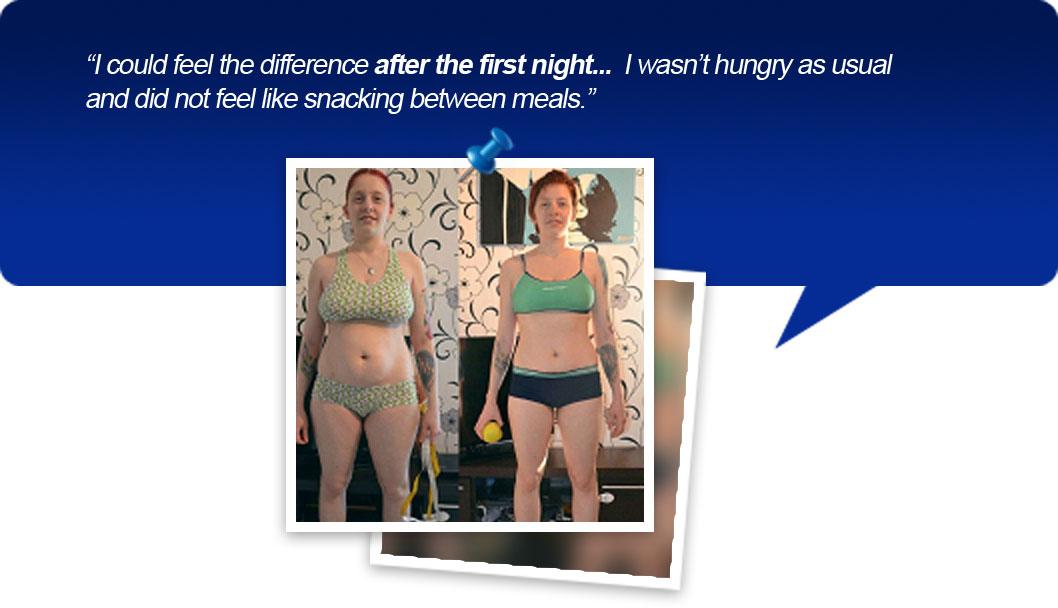 New Weight Loss Method – Neuro Slimming – Gastric Banding